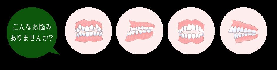 case2抜歯症例-こんなお悩みありませんか?